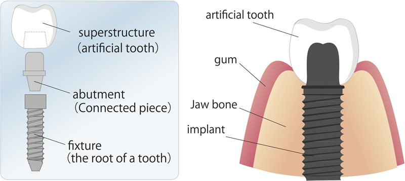 Sacramento dental implants